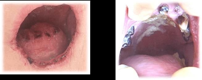 唾液の分泌量低下による乾燥