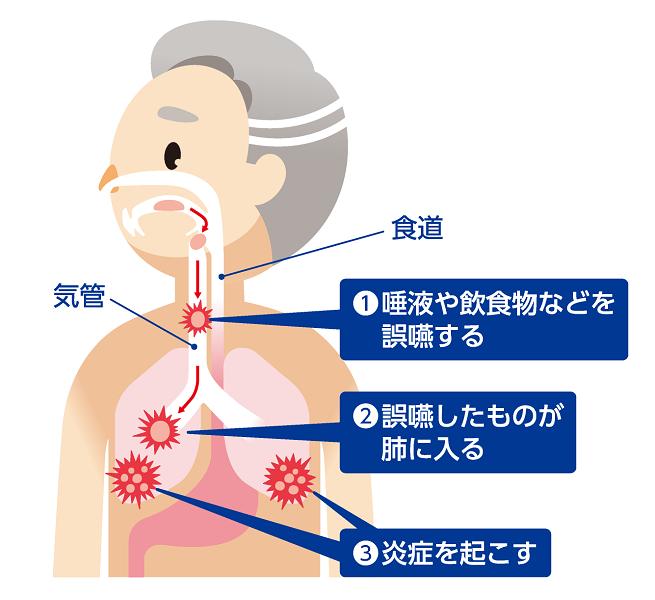 「誤嚥性肺炎」が起こる理由