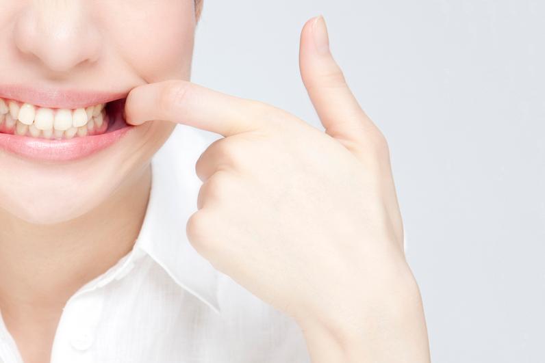 よく見られる歯茎のトラブル