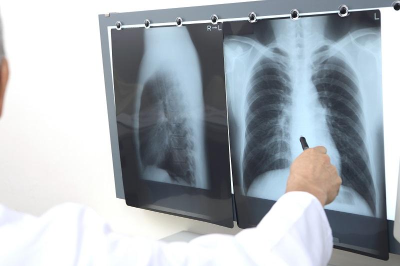 お口が原因で起こる病気―誤嚥性肺炎